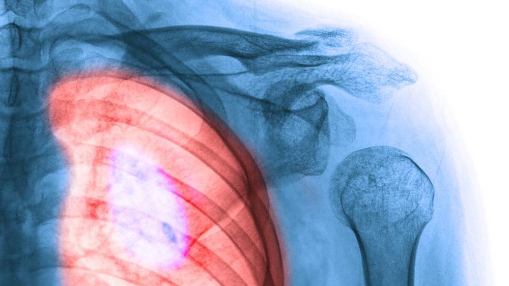 Akciğer kanseri nedir? Akciğer kanserinin nedenleri, belirtileri, türleri ve tedavisi...