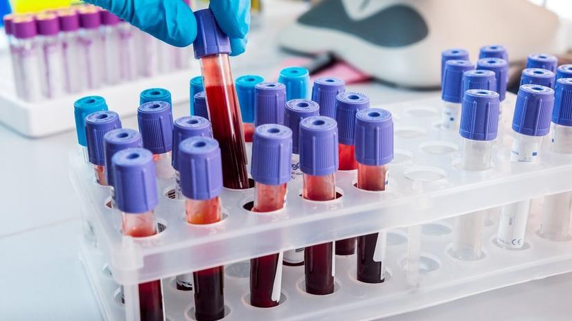 HDL Kolesterol nedir? HDL yüksekliği ve düşüklüğü ne anlama gelir?