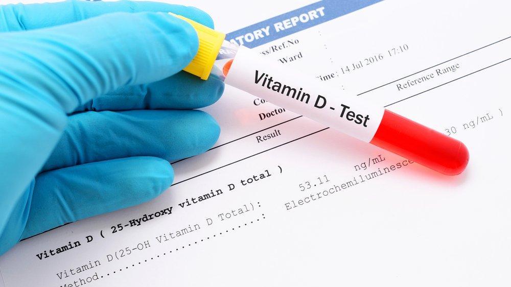 Beyin sağlığı için D vitamini şart!