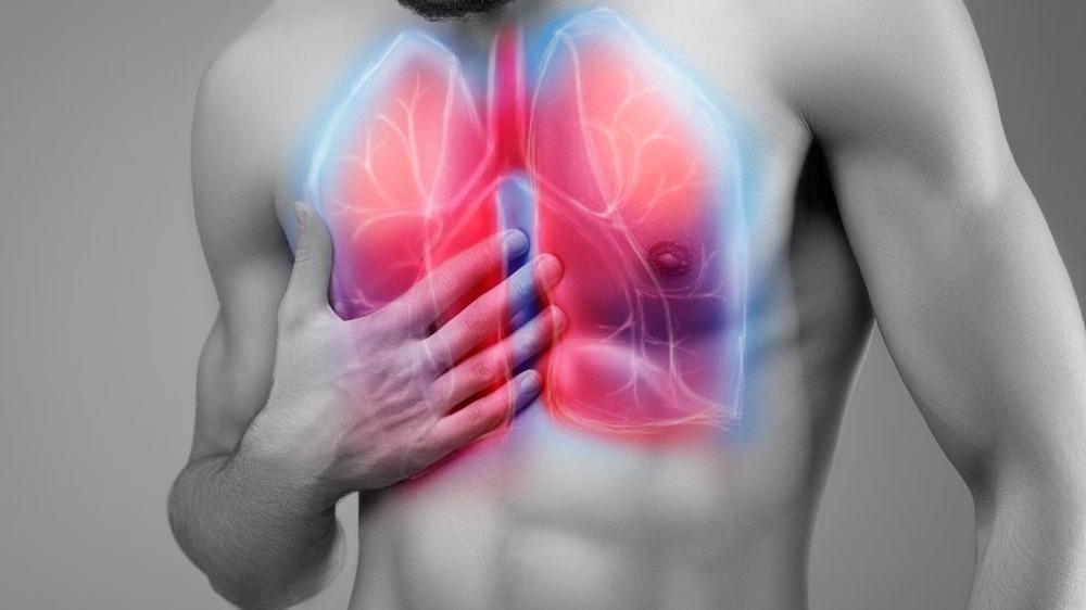 Akciğer ödemi (pulmoner ödem) nedir?