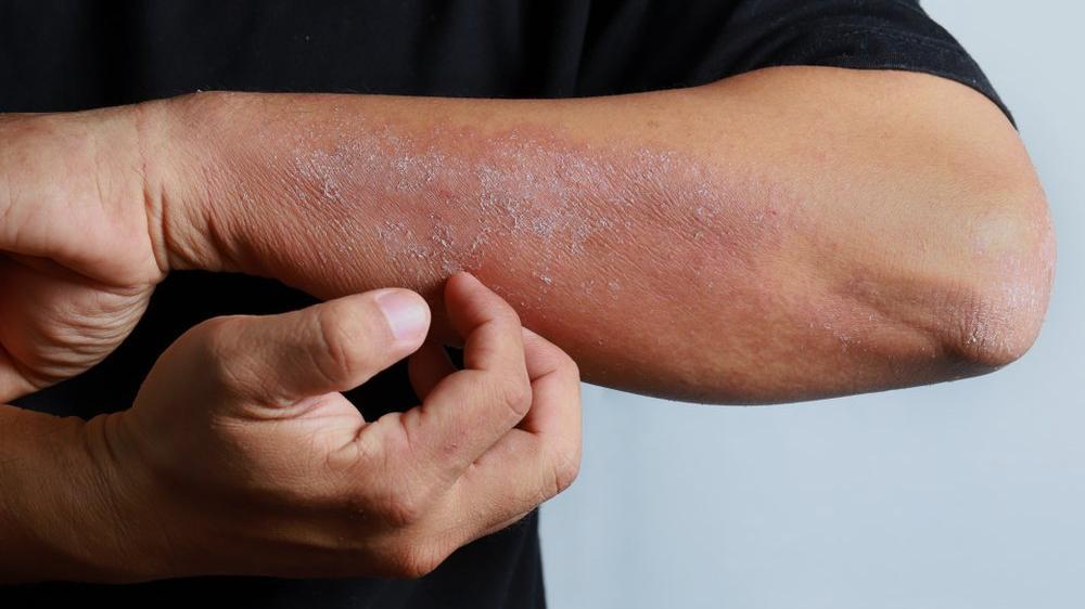 Ciltte mantar enfeksiyonu nedir?