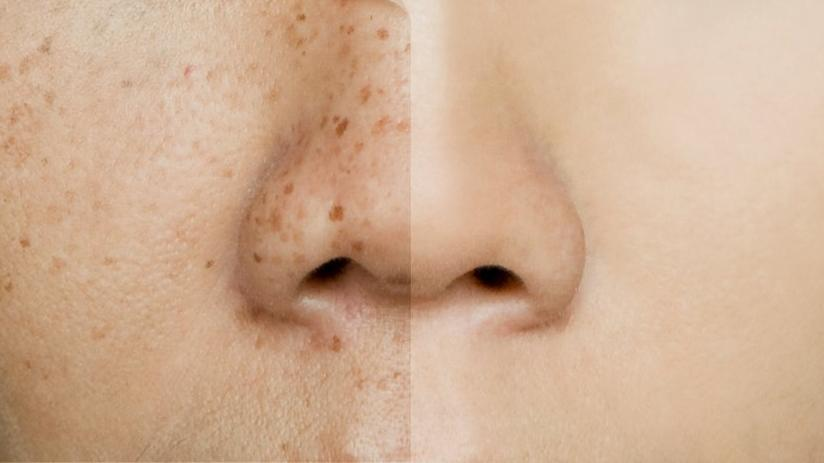 Ciltte pigment bozukluğu nedir? Pigment bozukluğunun nedenleri, çeşitleri ve tedavisi…