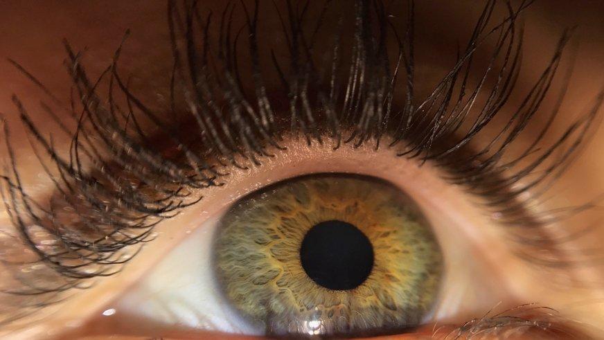 Göz iltihabı nedenleri, belirtileri ve tedavisi...