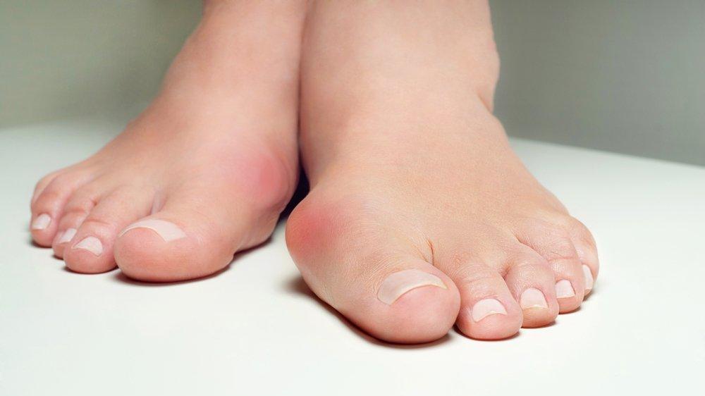 Ayak başparmağındaki kemik çıkıntısı neden olur?