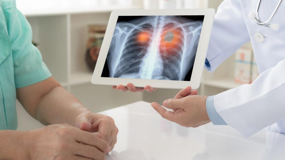 Akciğerde su toplanması (Plörezi) belirtileri ve tedavisi...