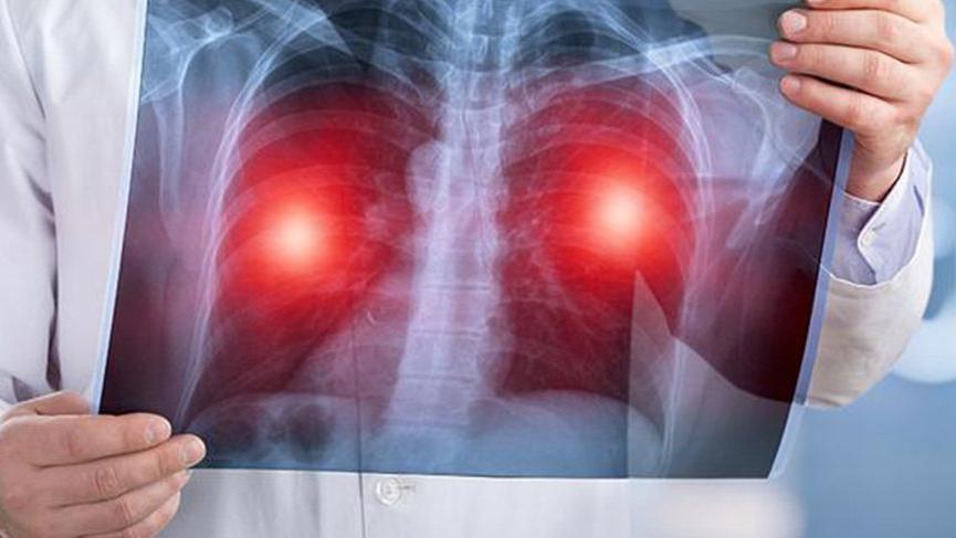 Pulmoner alveoler mikrolitiazis nedir? Pulmoner alveoler mikrolitiazis nedenleri, belirtileri ve tedavisi…