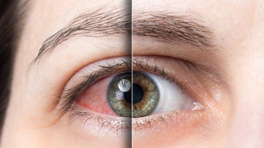 Kolobom nedir? Kolobom nedenleri, belirtileri ve tedavisi…