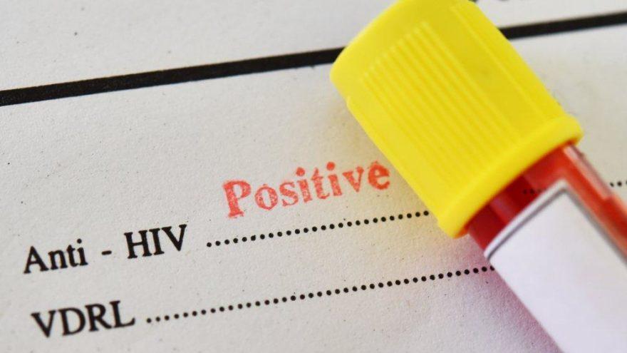 Dünyada ikinci vaka: HIV pozitiften tamamen kurtuldu