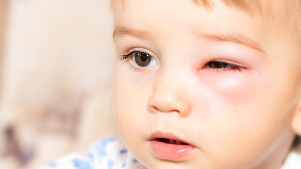 Arı sokması alerjisi belirtileri nelerdir?