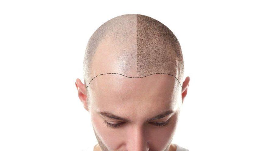 Saç ekimi ile ilgili doğru bilinen yanlışlar