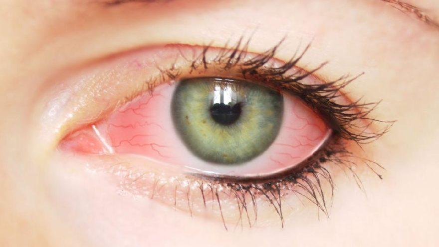 Göz nezlesi belirtileri ve tedavisi…