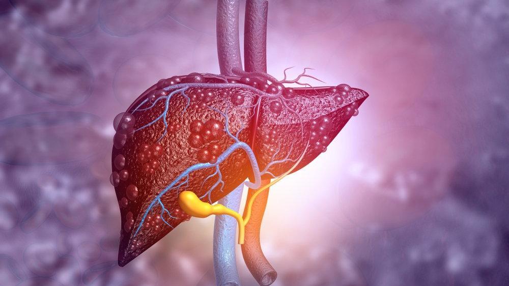 Karaciğer hastalıkları için hangi bölüme/doktora gidilir?