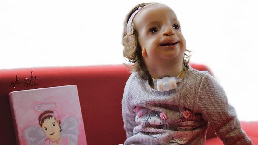 Treacher Collinsli Elif bebek yüzlerce ailenin sesi oldu