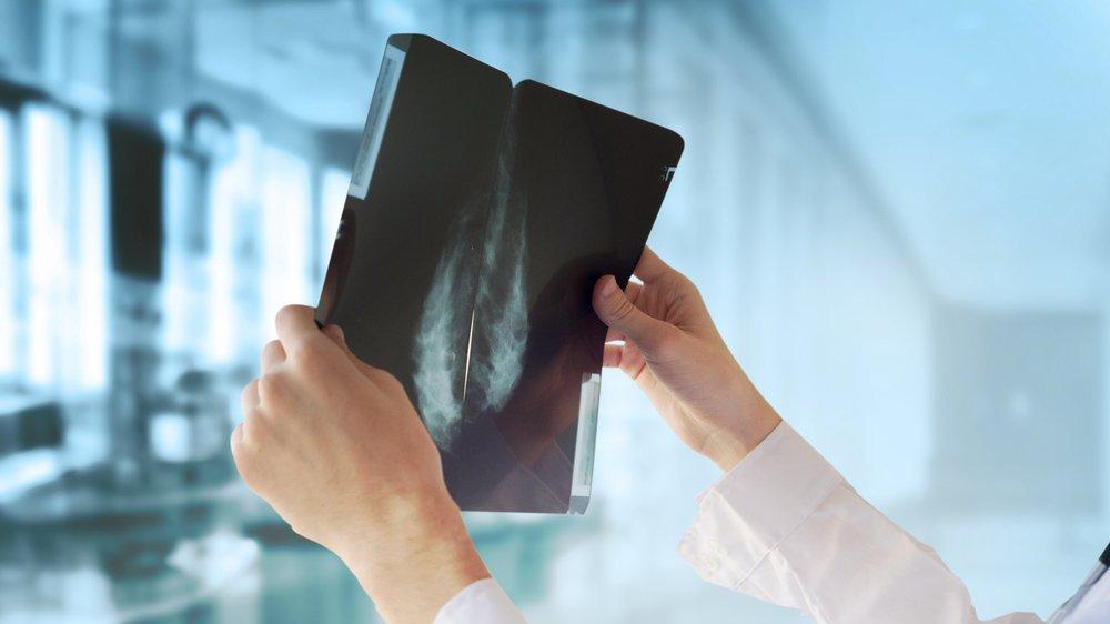 ABD'li bilim insanları: Meme kanseri riskini beş yıl önceden tespit edebiliyoruz