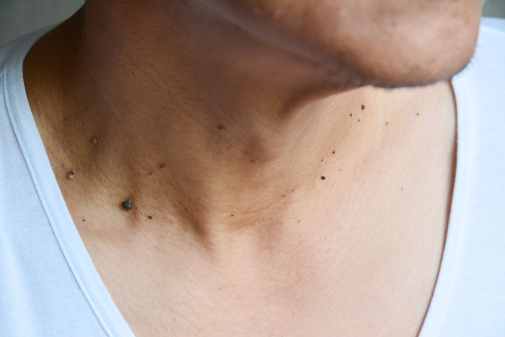 pictures of skin cancer - 1000×667