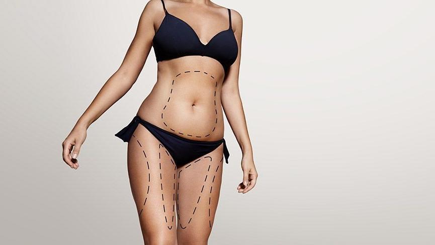 'Liposuction'ın püf noktaları…