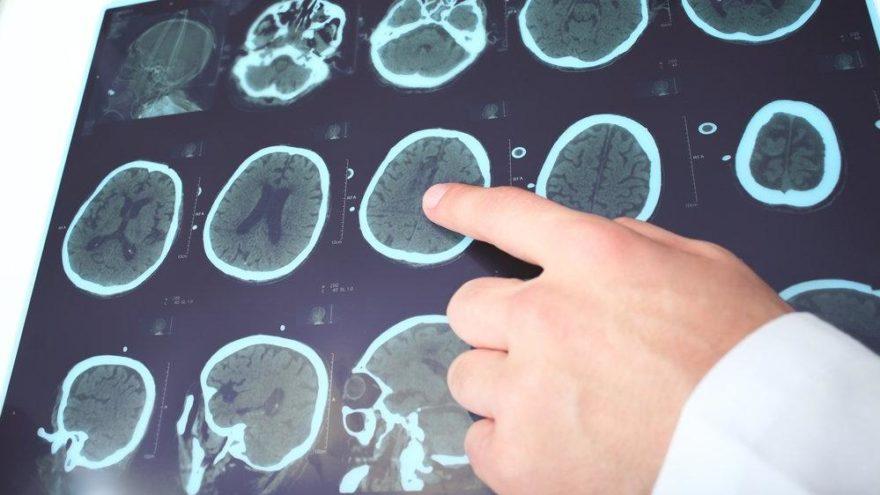 MS nedir, tedavisi var mı? MS'in belirtileri nelerdir?