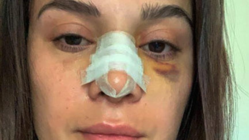 Sunucu Büşra Sanay burnunun kırıldığını sosyal medyadan duyurdu