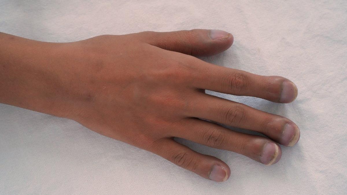 Çomak parmak nedir? Belirtileri ve tedavisi...