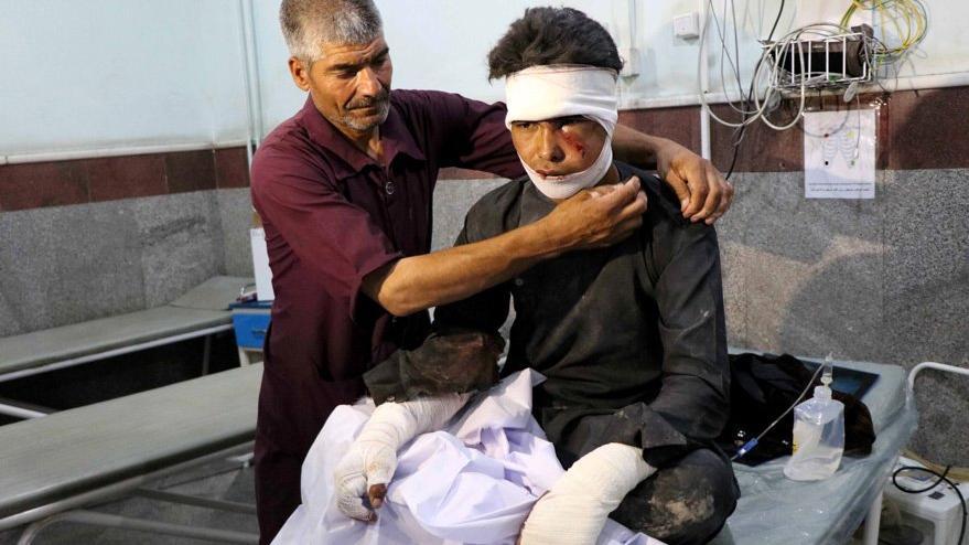 Afganistan'da korkunç patlama: Çok sayıda ölü ve yaralı var