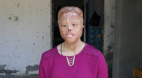 Leyla yeni yüz için yardım bekliyor