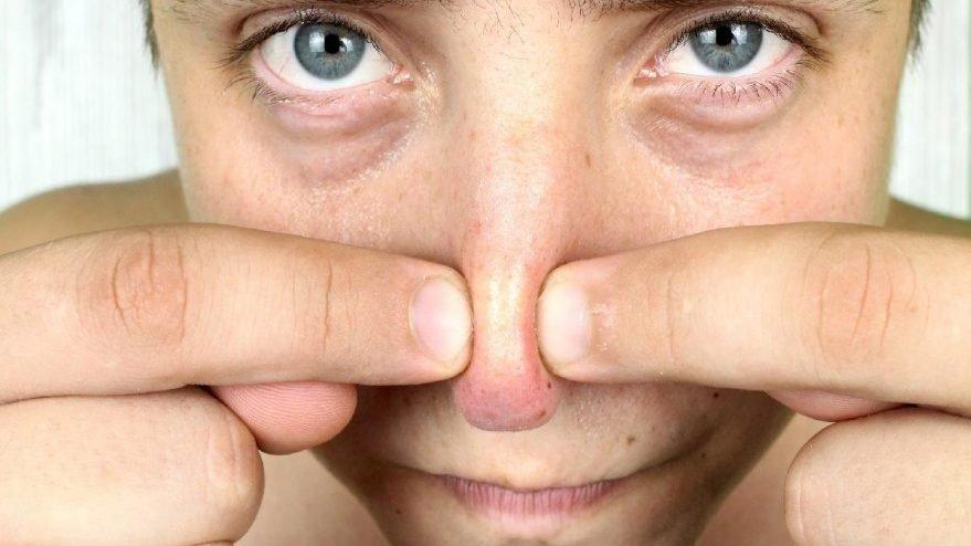 Evde siyah noktalar için yüz maskesi nasıl yapılır?