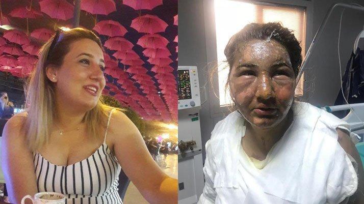 İstanbul'da kan donduran vahşet: Cezaevinden izinli çıktı, eski eşini yağ ile yaktı