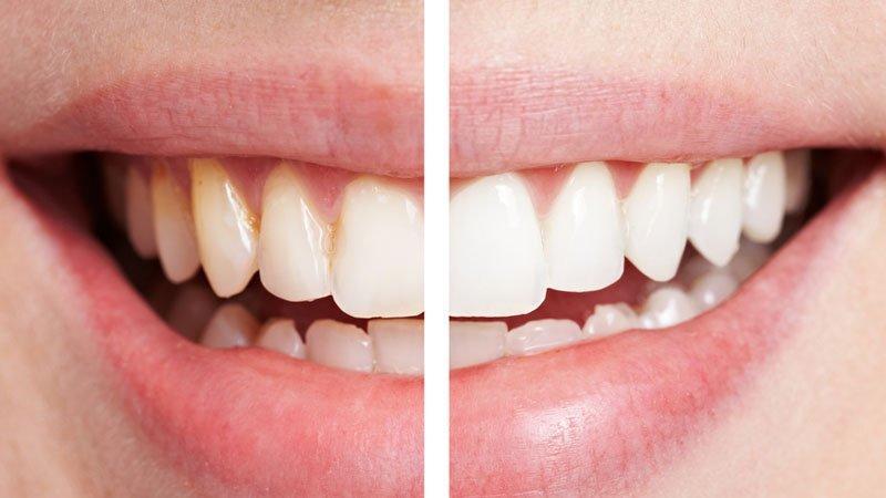 Doğal diş beyazlatma yöntemleri… Evde dişler nasıl beyazlatılır?