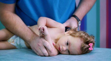 Serebral palsi uyarısı; 1,5 yaşında yürümediyse, 2 yaşında konuşmadıysa...