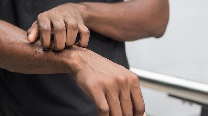Kaşıntı nasıl tedavi edilir? İşte vücutta kaşıntı nedenleri ve kaşıntıyı önlemenin yolları...