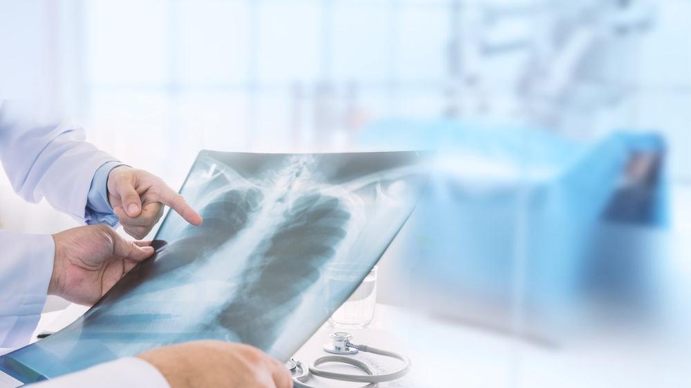 Elektronik sigara yüzünden ilk akciğer nakli