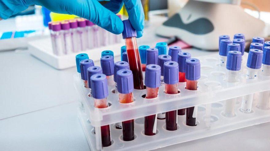 Tüp bebek öncesi hangi testler istenir?