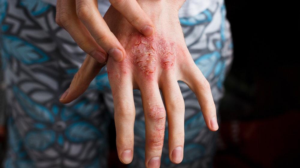 Çocuklarda atopik dermatit belirtileri ve tedavisi...