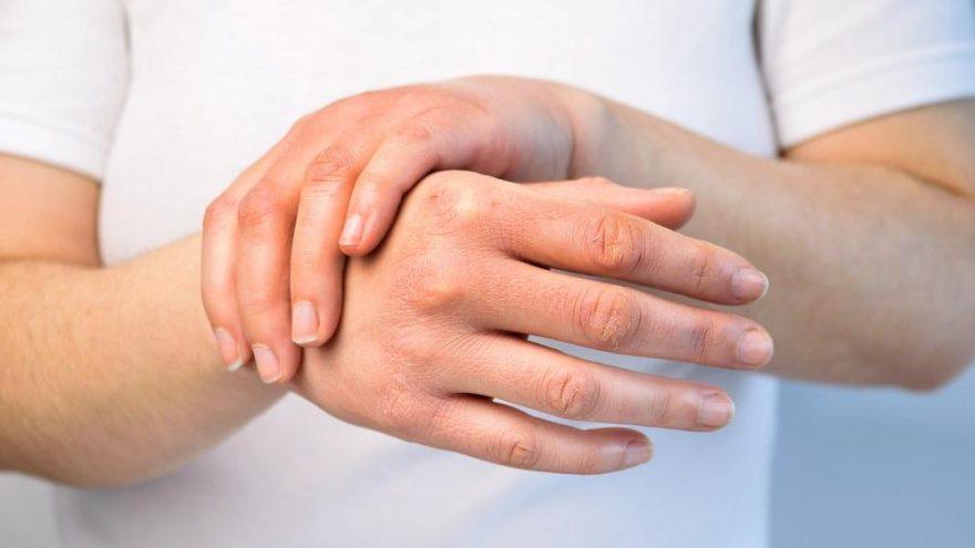 Ellerdeki kırışıklıklar nasıl giderilir? El maskesi tarifleri…