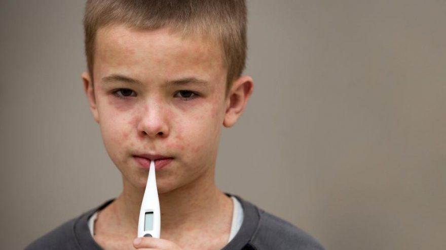 Kabakulak hastalığı neden olur? Nasıl bulaşır?