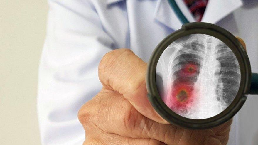 İnfluenza nedir? İnfluenza B virüsleri çabuk bulaşabilir! - Sağlık son  dakika haberler