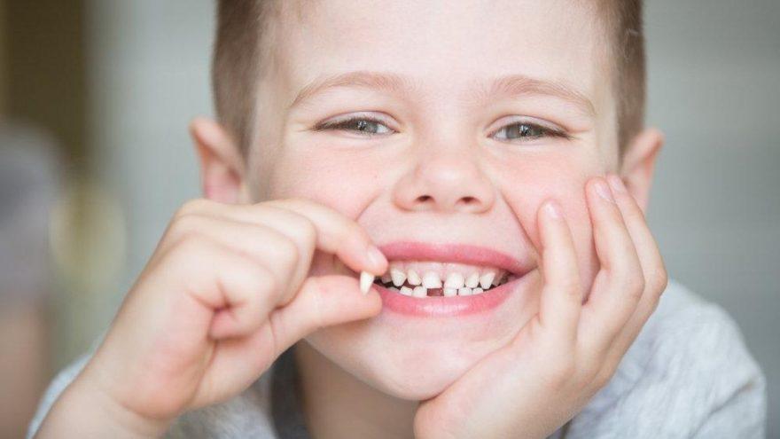 Süt dişleri çekilmeli mi? Hangi süt dişleri dökülür?