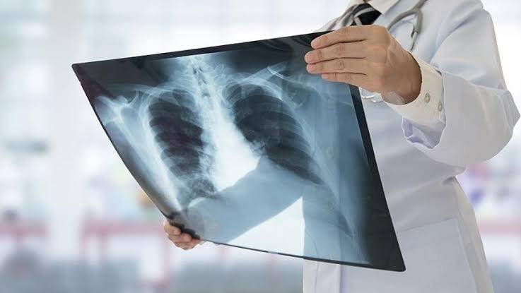 Röntgene bile özel davet!