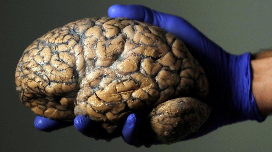 Bilim insanları, beynin yaşlanmasını yavaşlatmanın yolunu buldu