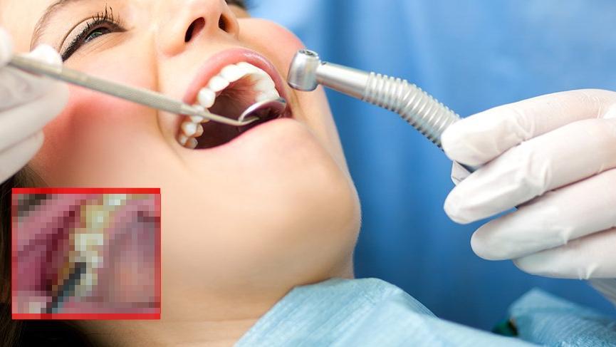 Kadın hastanın diş etlerinden çıkanlar doktorları bile şaşırttı!