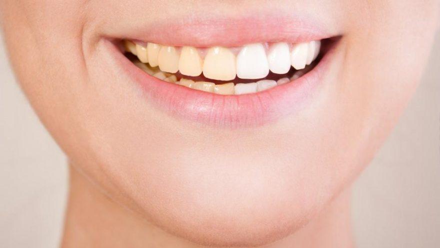 Diş sararmasını önlemek için ne yapmalı?