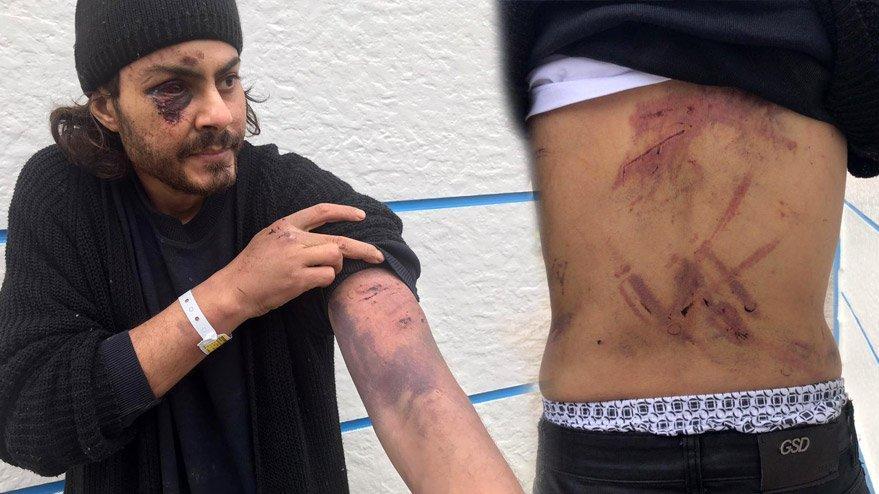 Yunan askerler demir çubukla dövdü! Türkiye tedavi altına aldı