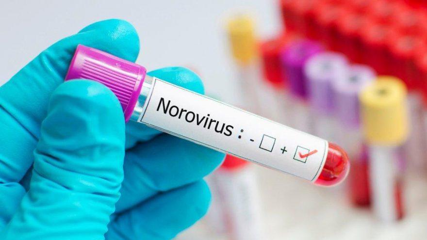 Norovirüs enfeksiyonu nedir? Belirtileri ve tedavisi…