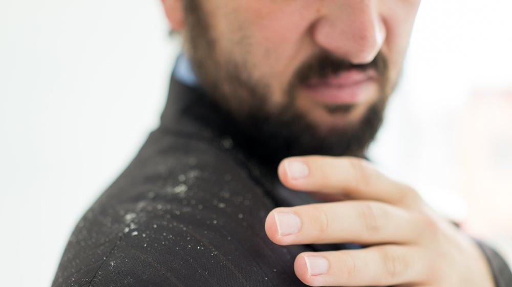 Sakal kepeklenmesi neden olur, nasıl geçer?