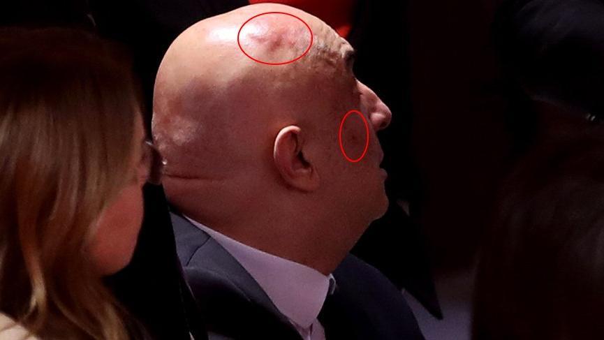 CHP'li Özkoç'un yüzünde ve kafasında kızarıklık oluştu!