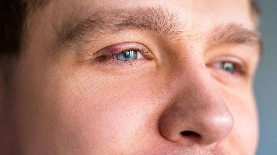 Göz çevresindeki yağ bezeleri nasıl yok edilir?