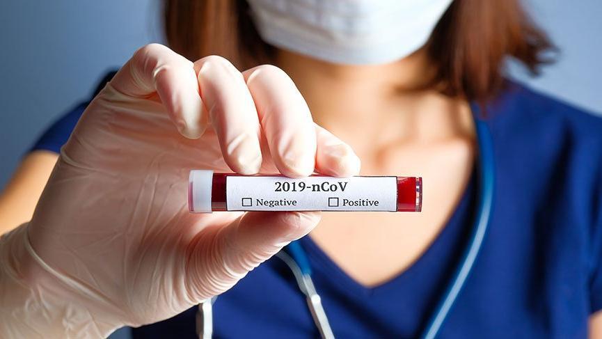 Son dakika... Türkiye'de kaç kişiye corona virüsü testi yapıldı?