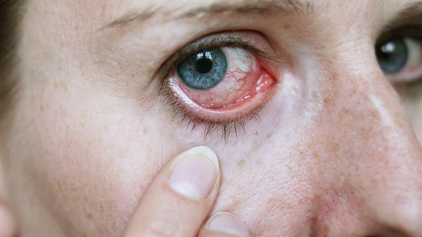 Corona virüsüne karşı gözlerinizi korumayı unutmayın