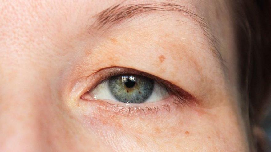 Göz kapağı düşüklüğü için doğal öneriler…
