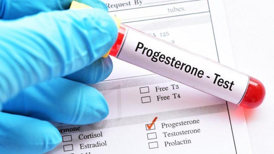 Progesteron değerleri kaç olmalı?